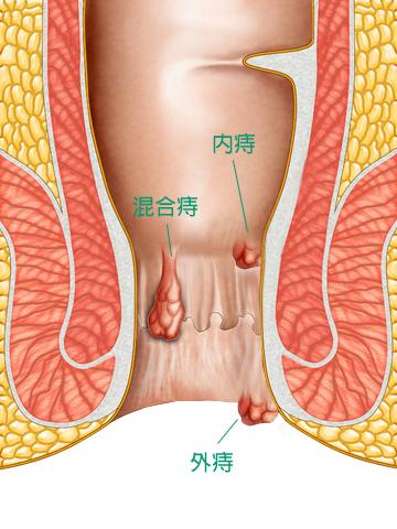 内痔结构图